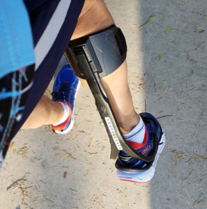Endurance athlete Pete Armas uses leg braces to help him walk and run after being struck by a drunk driver