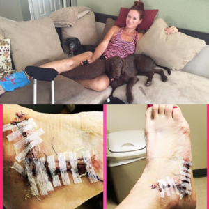 Gina Nofzinger recovering from ankle surgery
